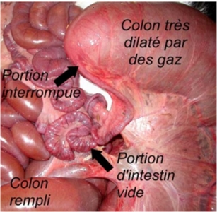 atrésie du colon